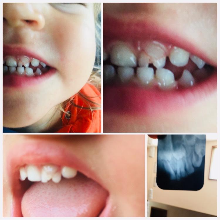 Η τρομακτική θέα του σπασμένου δοντιού για το 22μ παιδάκι μας
